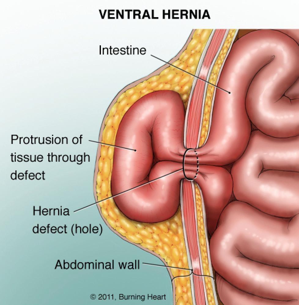 K C Surgical Associates PC - Patient Services for Hernia surgery
