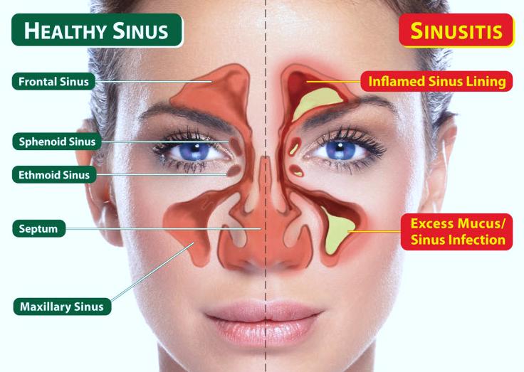 Sinusitis Goshen NY 10924